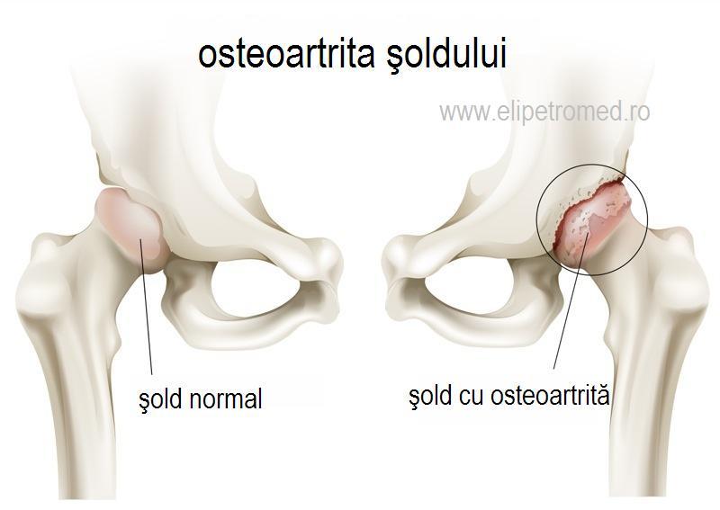 durere în articulațiile degetelor în timpul extensiei